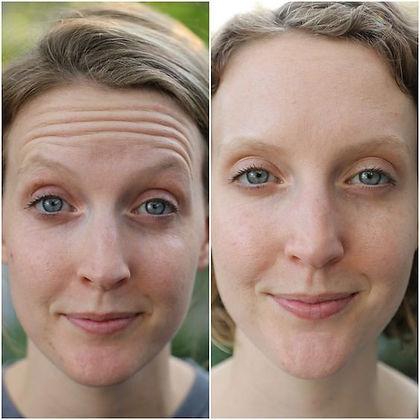 bótox antes y después