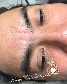 _tonyochoadrummer had a scar over his ri