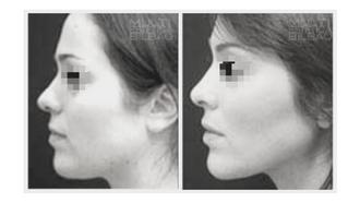 linea mandibular mandibula volumen antes y despues bilbao arrugas bioplastia acido hialuronico