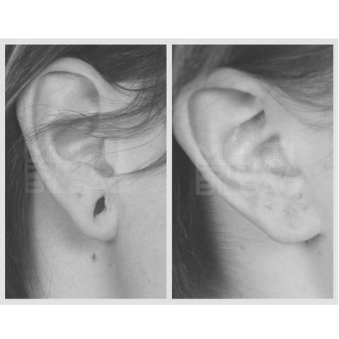 corregir correccion lobulo rasgado perdida de volumen rellenar oreja antes y despues bilbao