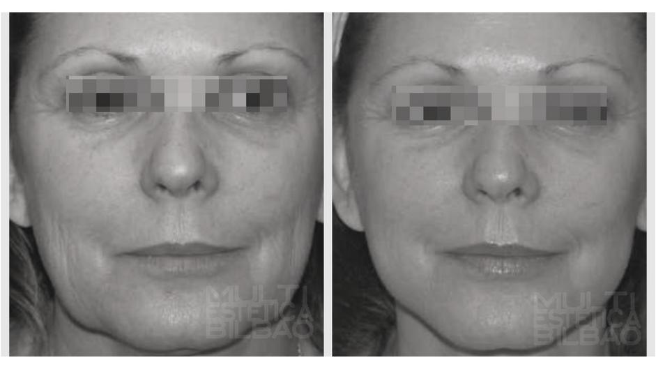 antes y despues micropigmentacion bilbao futura pro facial radiofrecuencia flacidez bilbao resultados