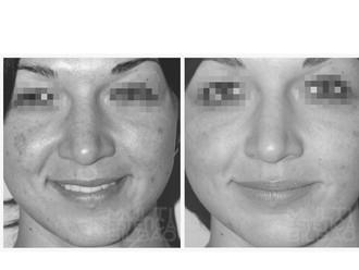 antes y despues resultados microdermoabrasion punta de diamante peeling mecanico bilbao multiestetica bilbao manchas sol acne poros dilatados puntos negros piel apagada