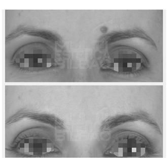 antes y despues verrugas eliminar  plasma bilbao