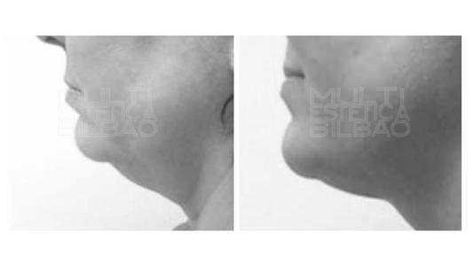 eliminar papada belkyra bilbao  antes y despues resultados