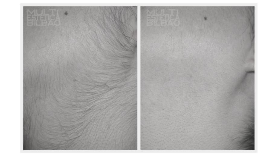 depilacion laser diodo lightsheer bilbao vello patillas antes y despues resultados multiestetica bilbao