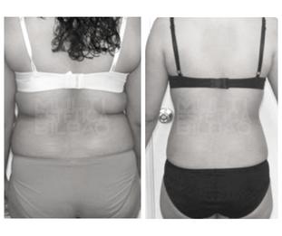 bodysculptor antes y despues resultados bilbao