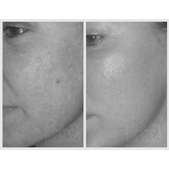 eliminar manchas sol acne marcas peeling quimico medico prxt33 antes y despues resultados