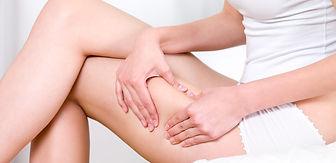 como-eliminar-la-celulitis-en-las-pierna