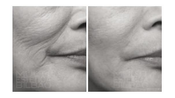 surco nasogeniano pomulos antes y despues bilbao arrugas bioplastia acido hialuronico