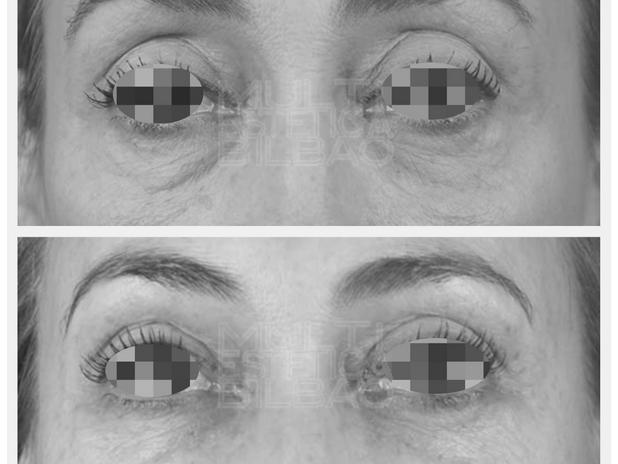 antes y despues ojeras bolsas parpados caidos blefaroplastia sin cirugia plasma bilbao