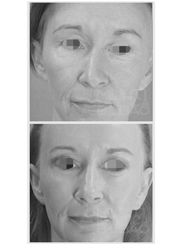 antes y despues mesoterapia facial bilbao