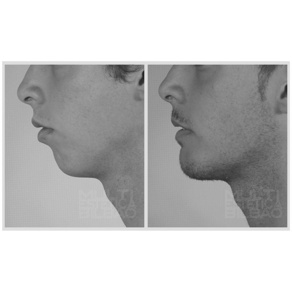 acido hialuronico menton relleno aumento volumen antes y despues bilbao
