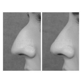 eliminar nariz rinomodelacion sin cirugia corregir rinoplastia acido hialuronico bilbao antes y despues resultados