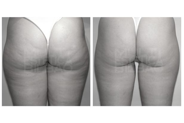 Ondas de choque celulitis bilbao antes y despues