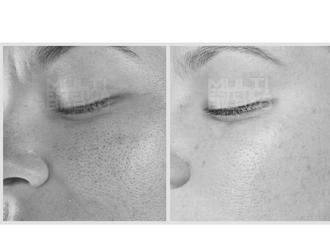 antes y despues resultados microdermoabrasion punta de diamante peeling mecanico bilbao multiestetica bilbao manchas sol acne poros dilatados puntoss negros piel apagada