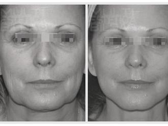 antes y despues verrugas eliminar  plasma indiba facial radiofrecuencia arrugas flacidez
