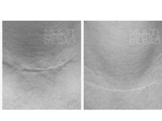 antes y despues resultados microdermoabrasion punta de diamante peeling mecanico bilbao multiestetica bilbaomanchas porors dilatados acne marcas dermapen microneedling cicatriz arrugas flacidezmultiestetica bilbao