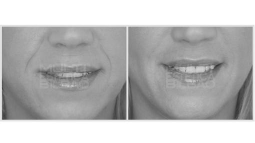 surco nasogeniano acido hialuronico rellenar arrugas antes y despues bilbao