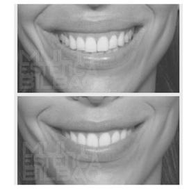 sonrisa gingival encia botox corregir eliminar antes y despues bilbao