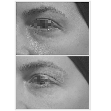 eliminar ojeras acido hialuronico bilbao bolsas antes y despues resultados