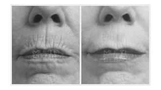 surco nasogeniano pomulos antes y despues bilbao arrugas codigo de barrasbioplastia acido hialuronico
