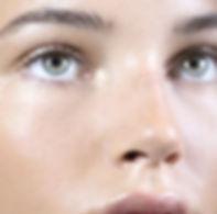 eliminar tratamiento ojeras acido hialuronico relleno bilbao medicina estetica multiestetica bilbao