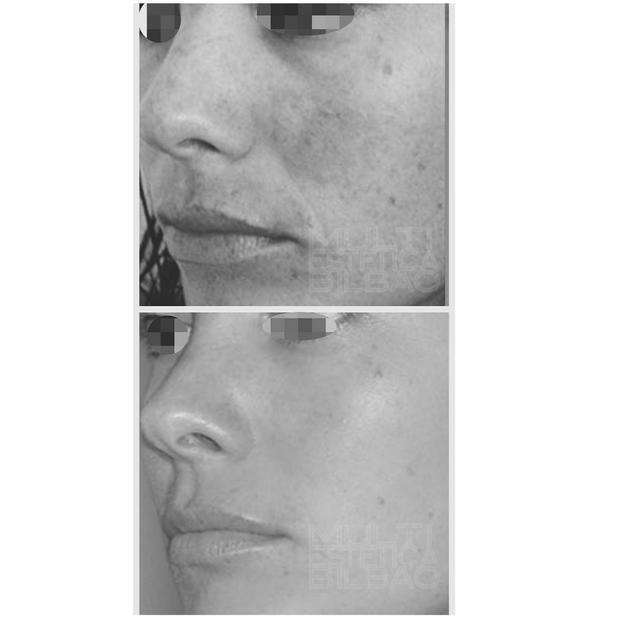 antes y despues eliminar manchas peeling acne sol bilbao