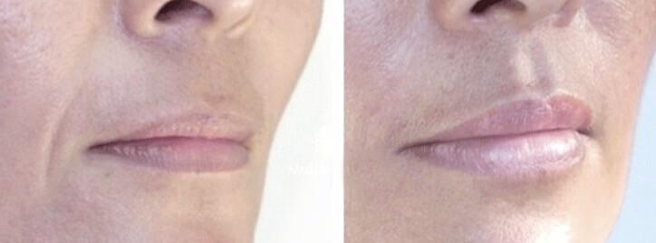 Aumento de labios y eliminación del surco nasogeniano con ácido hialurónico Bilbao medicina estética