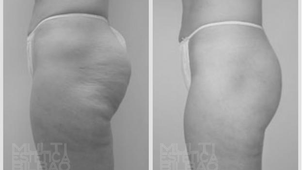 celulitis grasa gluteos alidya mesoterapia corporal antes y despues bilbao