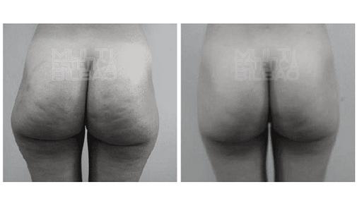 grasa localizada adelgazar reducir volumen liposuccion sin cirugia liposonix reducir talla rapido en una sesion bilbao antes y despues