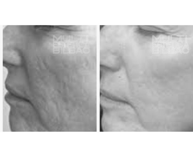 antes y despues resultados microdermoabrasion punta de diamante peeling mecanico bilbao multiestetica bilbaomanchas porors dilatados acne marcas dermapen microneedling multiestetica bilbao