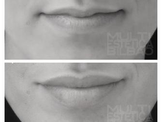 aumento de labios volumen acido hialuronico bilbao antes y despues