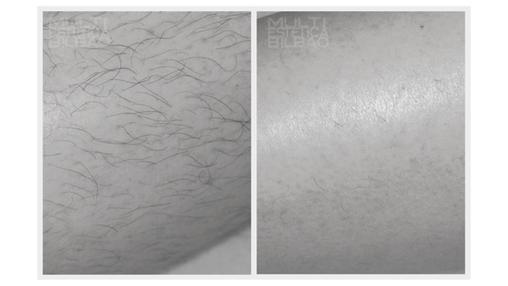 depilacion laser diodo lightsheer bilbao vello piernas brazos antes y despues resultados multiestetica bilbao
