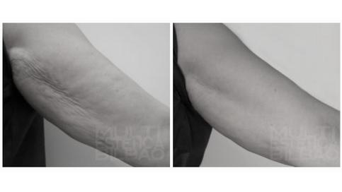 flacidez piel naranja futura pro ultratone velashape bioestimulacion adelgazamiento flacidez celulitis bilbao antes y despues