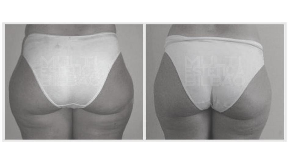 antes y despues eliminar  indiba corporal radiofrecuencia arrugas flacidez
