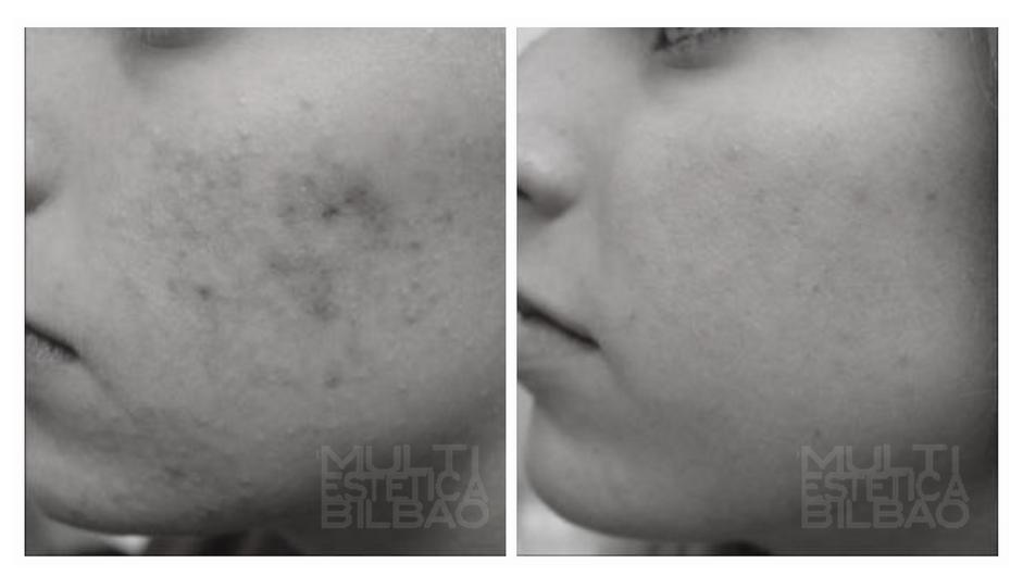 antes y despues fototerapia fotoporacion led laser bilbao manchas acne sol facial radiofrecuencia flacidez bilbao resultados