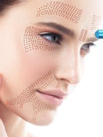 OnlinePlasma/Fibroblast pen Skin Tightening Course