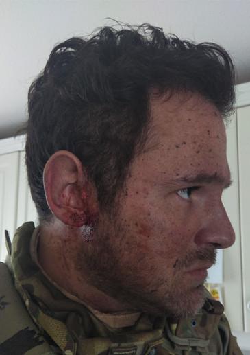 Dirt/ Sweat/   Injury