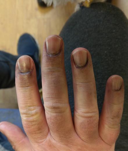 Dirty Nails
