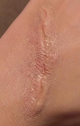 Scar Prosthetic