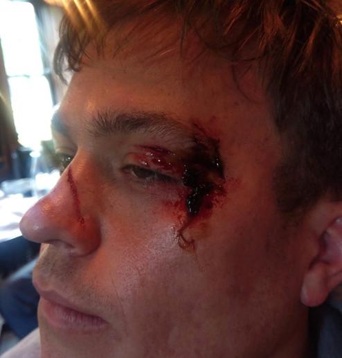 Eye Injury/Swelling/Scratch