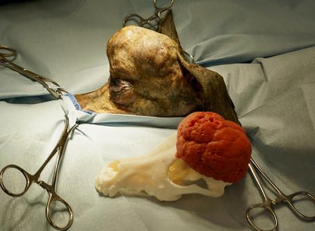 Impressão de crânio em 3D