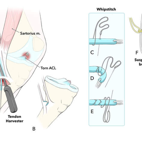 ACL Reconstruction with Hamstring Graft