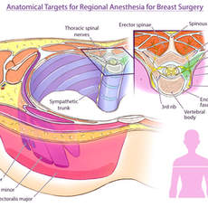 Anatomical Targets for Regional Anesthesia for Breast Surgery