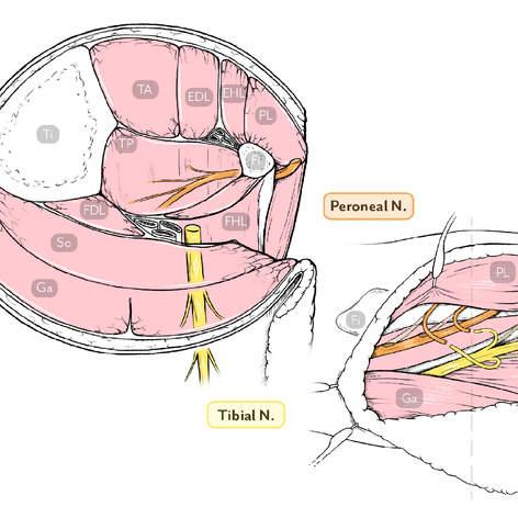 Tibial Nerve Transfer