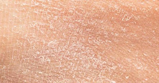 Se produce oie la deshidratación de la piel causada por los tratamientos. Inicialmente, la piel pierde su brillo y elasticidad.  Posteriormente, se produce descamación y fisuras que pueden favorecer infecciones cutáneas. Si persiste la sequedad cutánea causada por los tratamientos puede desencadenar en picor generalizado. (prurito)