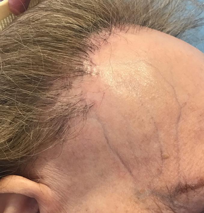 """La alopecia suele afectar al pelo de la zona de la diadema (zona fronto-temporal) y al pelo de las cejas, aunque también puede afectarse el pelo de la zona de la nuca e incluso del vello corporal. Es típico que puedan aparecer """"granitos"""" en la cara y es frecuente asimismo que se marquen las venas de la frente.  La alopecia frontal fibrosante progresa lentamente durante unos años y luego, en algunos pacientes, tiende a estabilizarse espontáneamente. S&M CENTROS CAPILARES"""