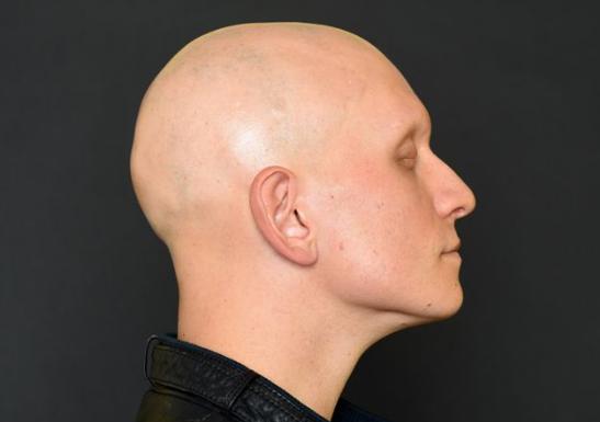 Esta variación de la alopecia areata se caracteriza por una extensión de la desaparición de cabelloen la totalidad del cuerpo. Los afectados por la alopecia areata universal sufren una disminución marcada de la producción de pelo. El propio sistema inmunitario combate los folículos pilosos, dejándolos en un estado de hibernación. Cuando vuelven a recibir la señal adecuada, los folículos pueden volver a generar pelo. Esta enfermedad es la variante más agresiva de la alopecia areata, y en algunos de los casos (aunque no siempre es así) puede estar relacionado con causas hereditarias. S&M CENTROS CAPILARES