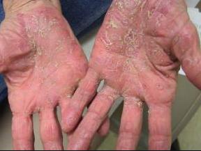 Se presenta como acortamiento u hormigueo y tras alteraciones sensitivas, seguido de hinchazón y enrojecimiento en manos y/o pies. Afecta de forma simétrica a las palmas de las manos y plantas de los pies  Progresiva mente puede aparecer descamación, ulceración e infección
