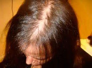 Existen dos factores que determinan las causas de esta calvicie: factor genético y factor hormonal, en donde la producción de andrógenos (hormonas masculinas) se debilita y ataca al cuero cabelludo, afectando al ciclo habitual de crecimiento del cabello. S&M CENTROS CAPILARES